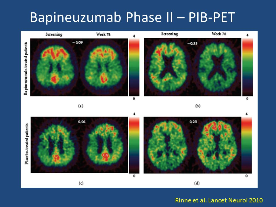 Bapineuzumab Phase II – PIB-PET