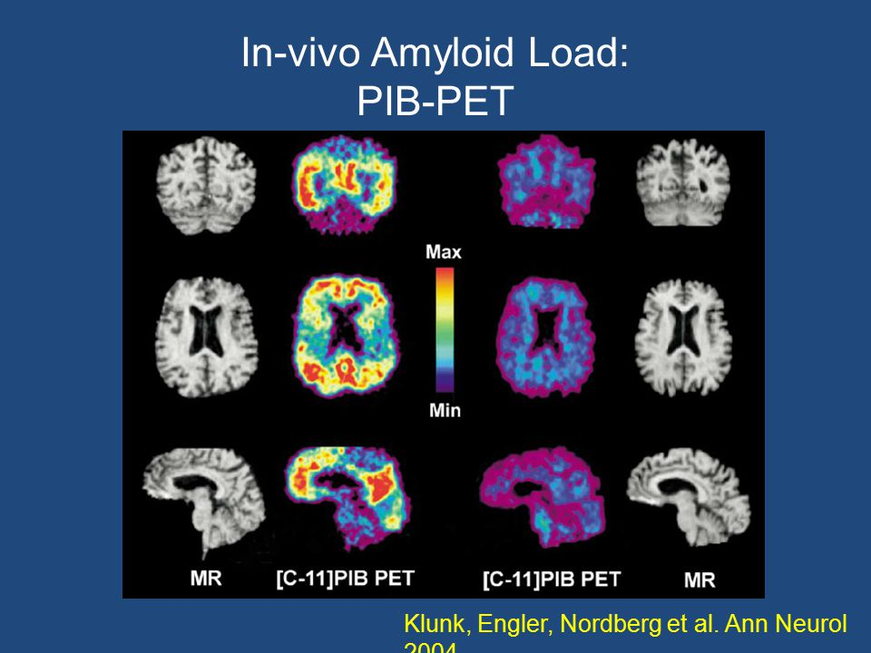 In-vivo Amyloid Load: PIB-PET