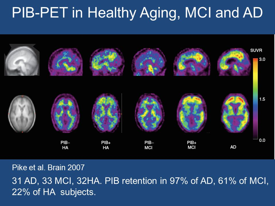 PIB-PET in Healthy Aging, MCI and AD