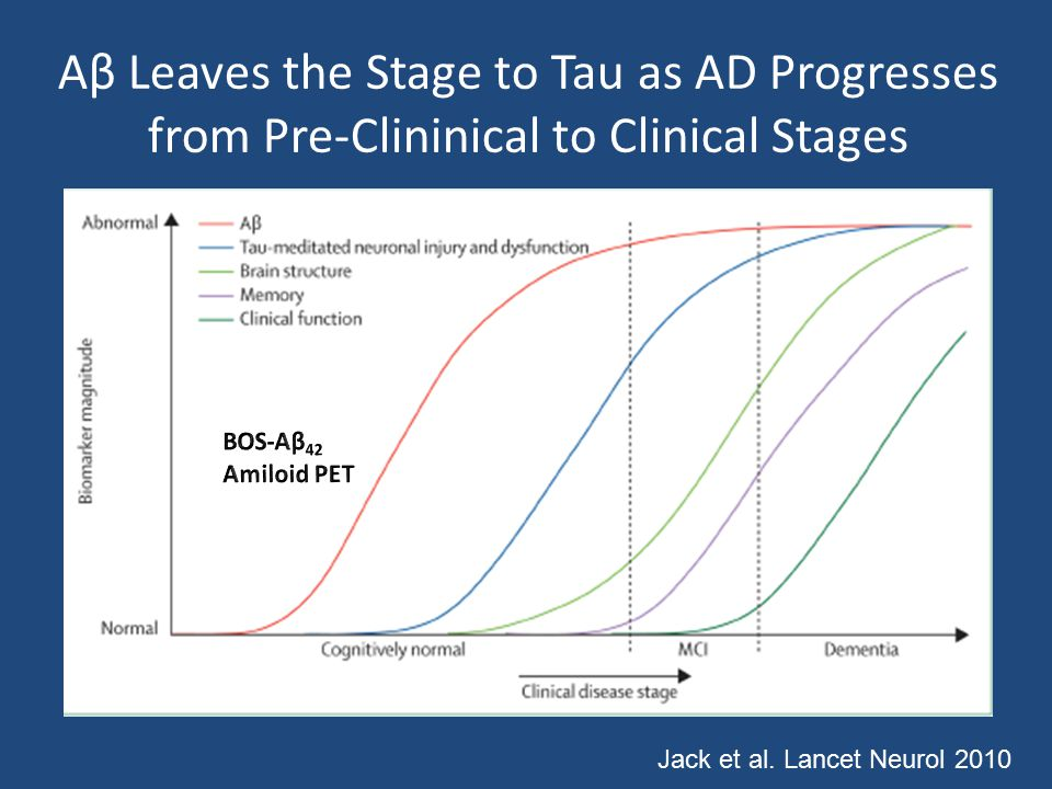 Aβ Leaves the Stage to Tau as AD Progresses from Pre-Clininical to Clinical Stages