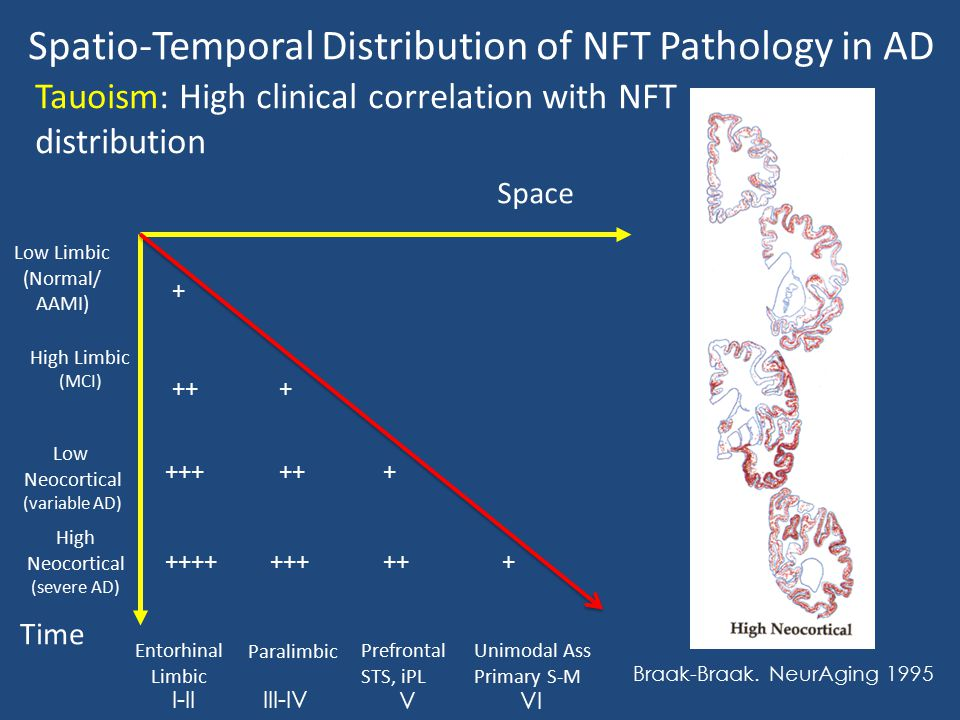 Spatio-Temporal Distribution of NFT Pathology in AD