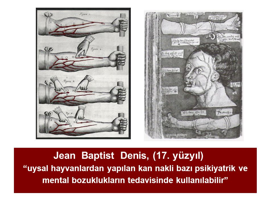 Jean Baptist Denis, (17. yüzyıl)