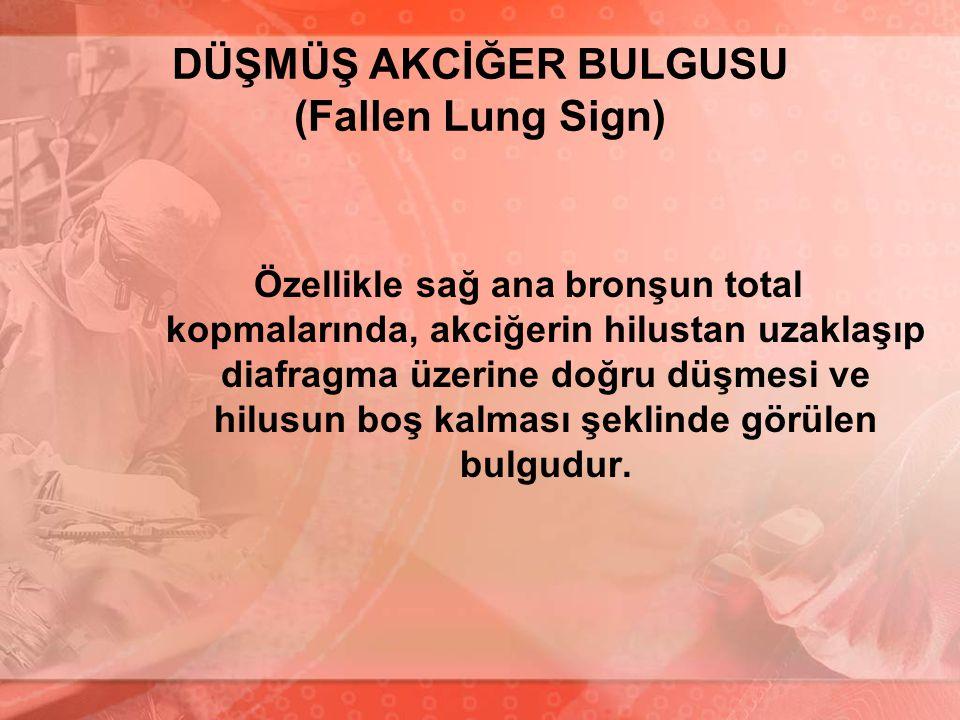 DÜŞMÜŞ AKCİĞER BULGUSU (Fallen Lung Sign)