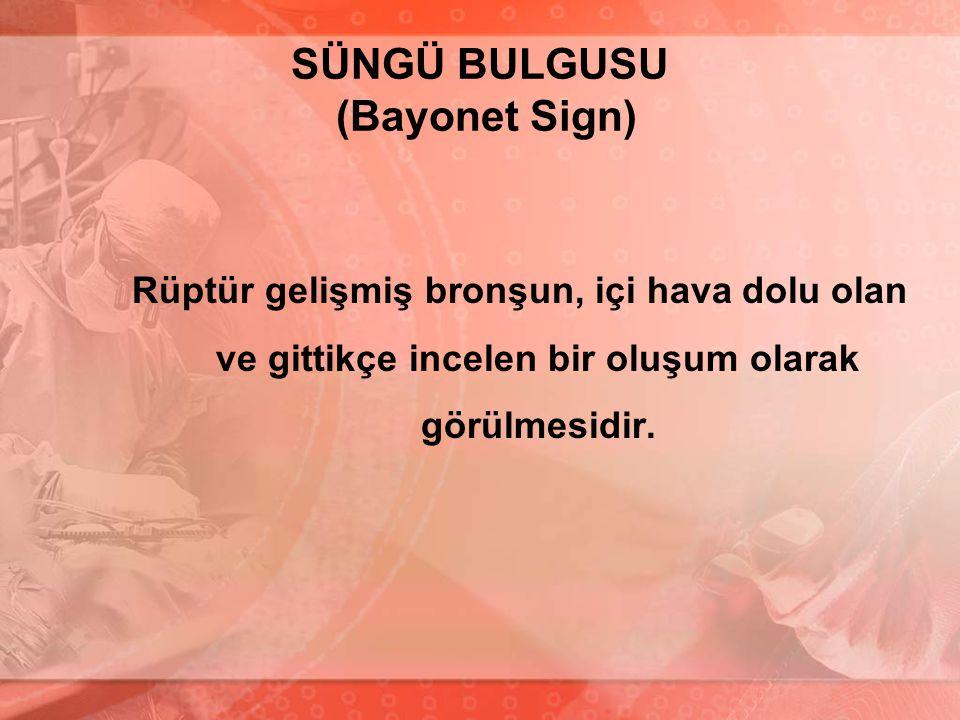 SÜNGÜ BULGUSU (Bayonet Sign)