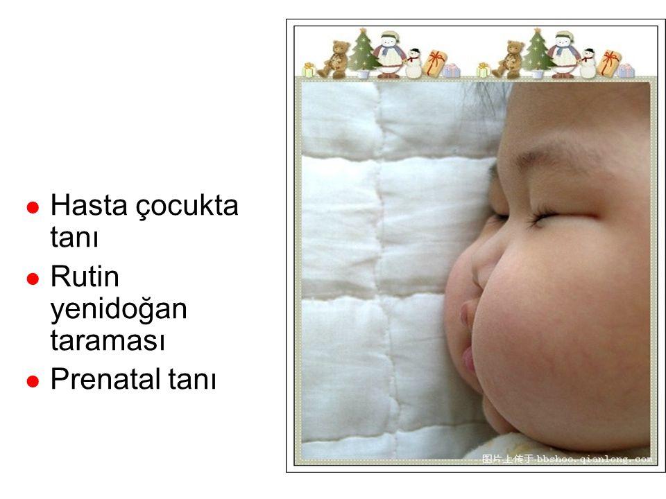 Tanı Hasta çocukta tanı Rutin yenidoğan taraması Prenatal tanı