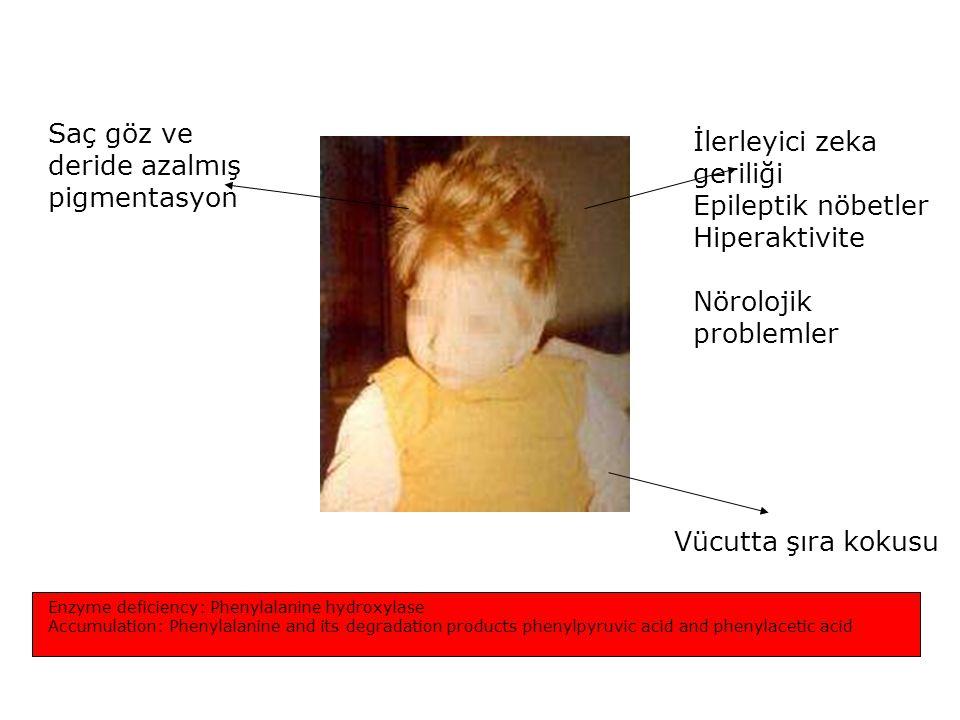 PKU Saç göz ve deride azalmış pigmentasyon İlerleyici zeka geriliği
