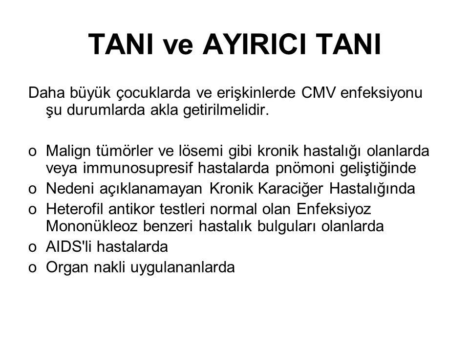 TANI ve AYIRICI TANI Daha büyük çocuklarda ve erişkinlerde CMV enfeksiyonu şu durumlarda akla getirilmelidir.