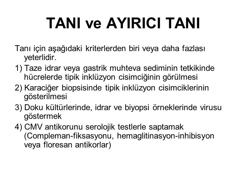 TANI ve AYIRICI TANI Tanı için aşağıdaki kriterlerden biri veya daha fazlası yeterlidir.