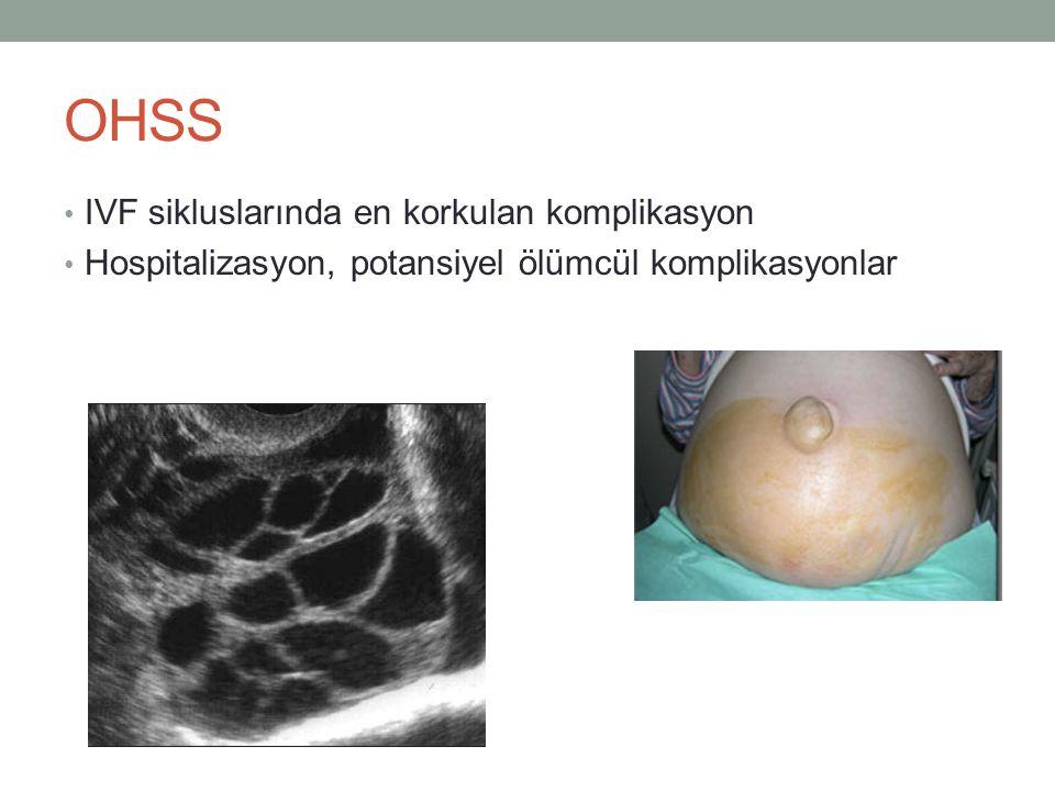 OHSS IVF sikluslarında en korkulan komplikasyon