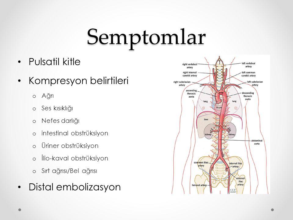 Semptomlar Pulsatil kitle Kompresyon belirtileri Distal embolizasyon