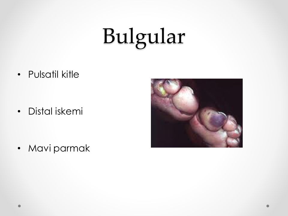 Bulgular Pulsatil kitle Distal iskemi Mavi parmak