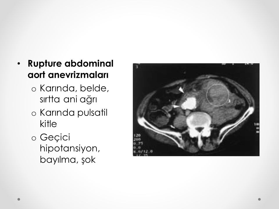 Rupture abdominal aort anevrizmaları
