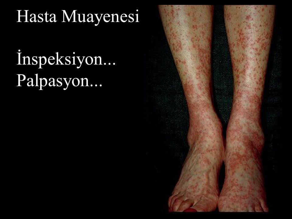 Hasta Muayenesi İnspeksiyon... Palpasyon...