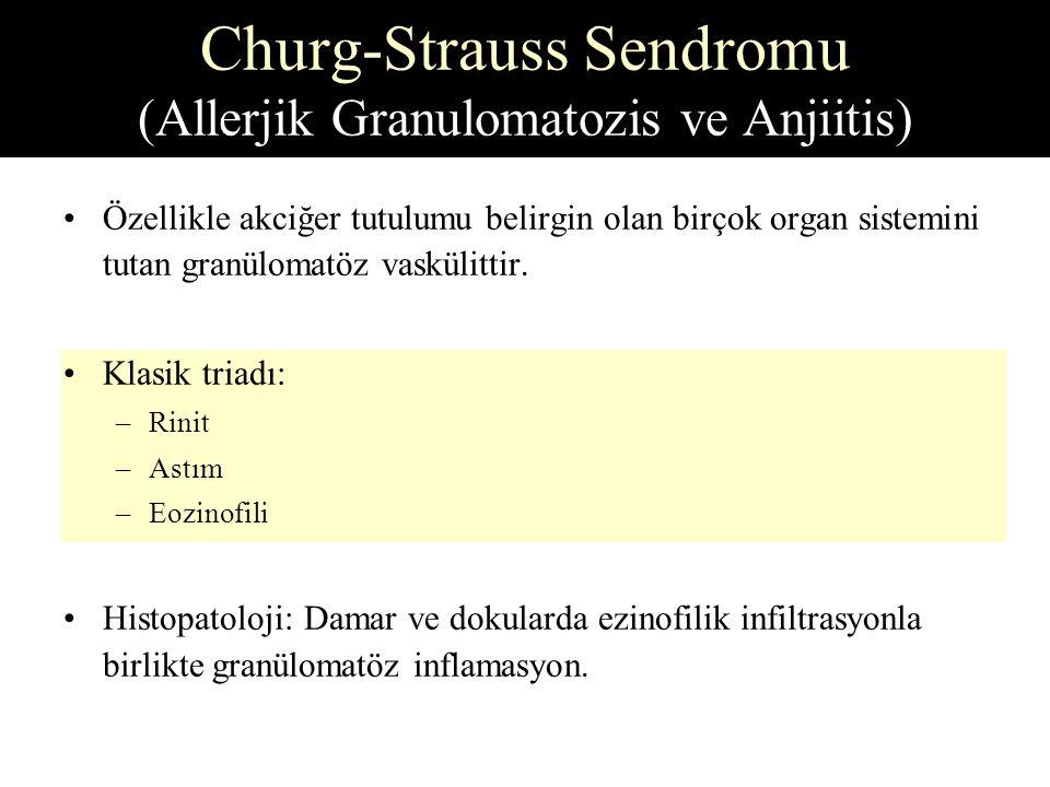 Churg-Strauss Sendromu (Allerjik Granulomatozis ve Anjiitis)