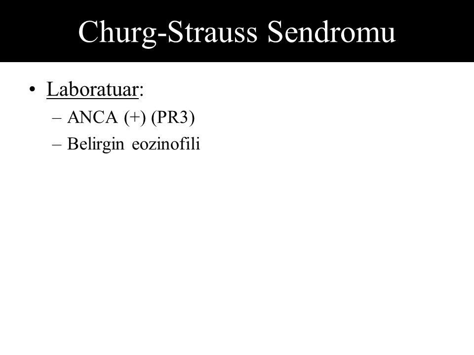 Churg-Strauss Sendromu