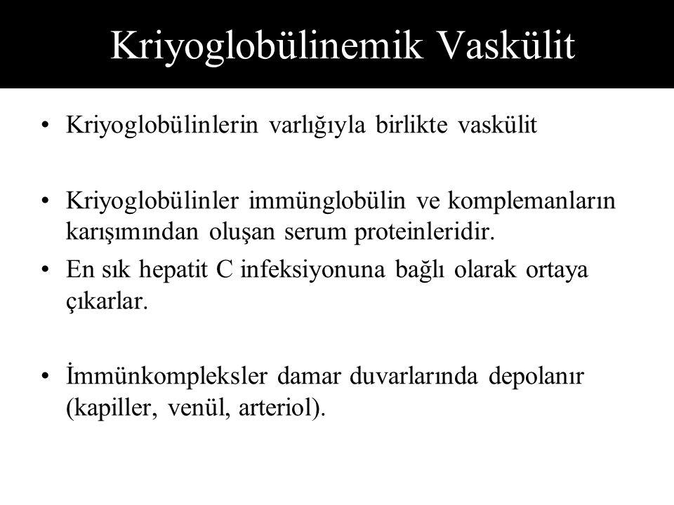 Kriyoglobülinemik Vaskülit