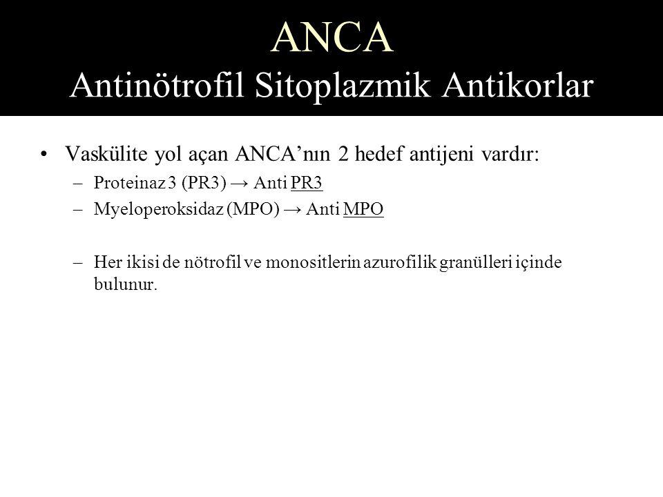 ANCA Antinötrofil Sitoplazmik Antikorlar
