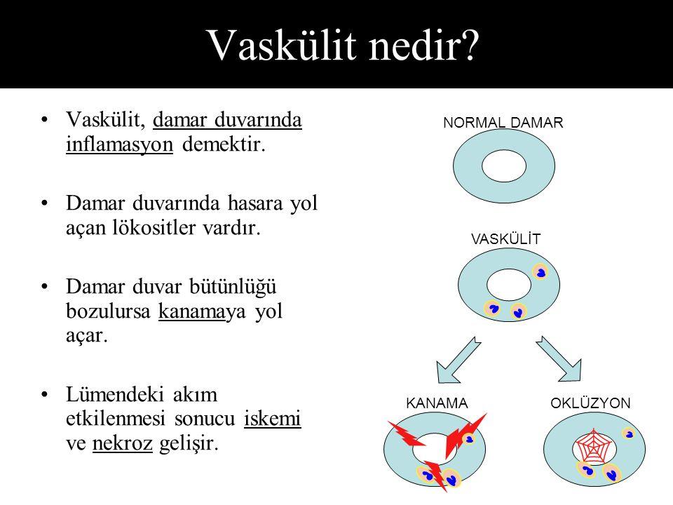 Vaskülit nedir  Vaskülit, damar duvarında inflamasyon demektir.