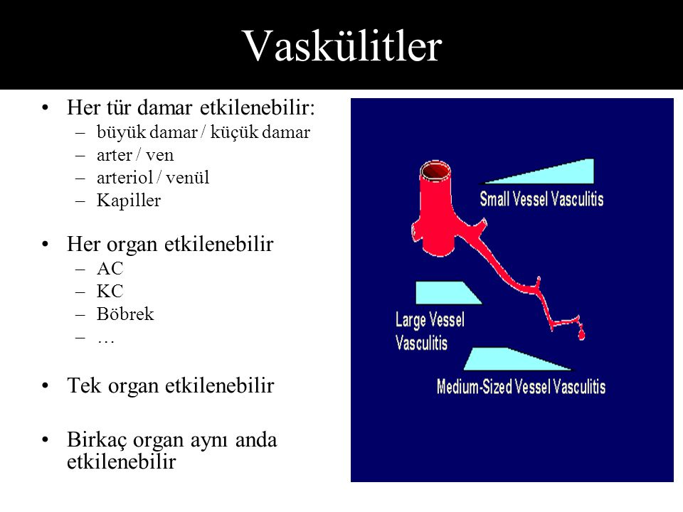 Vaskülitler Her tür damar etkilenebilir: Her organ etkilenebilir