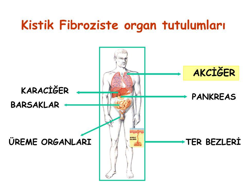 Kistik Fibroziste organ tutulumları