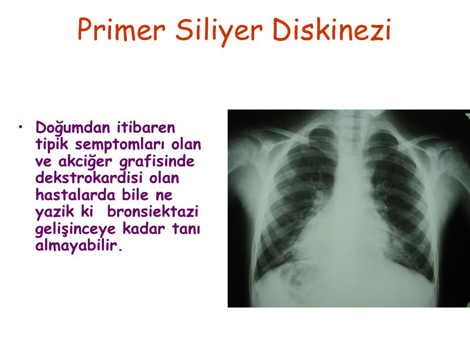 Primer Siliyer Diskinezi