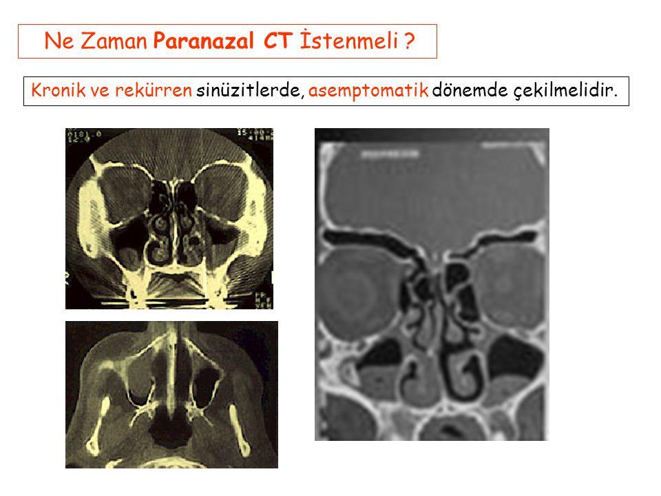 Ne Zaman Paranazal CT İstenmeli
