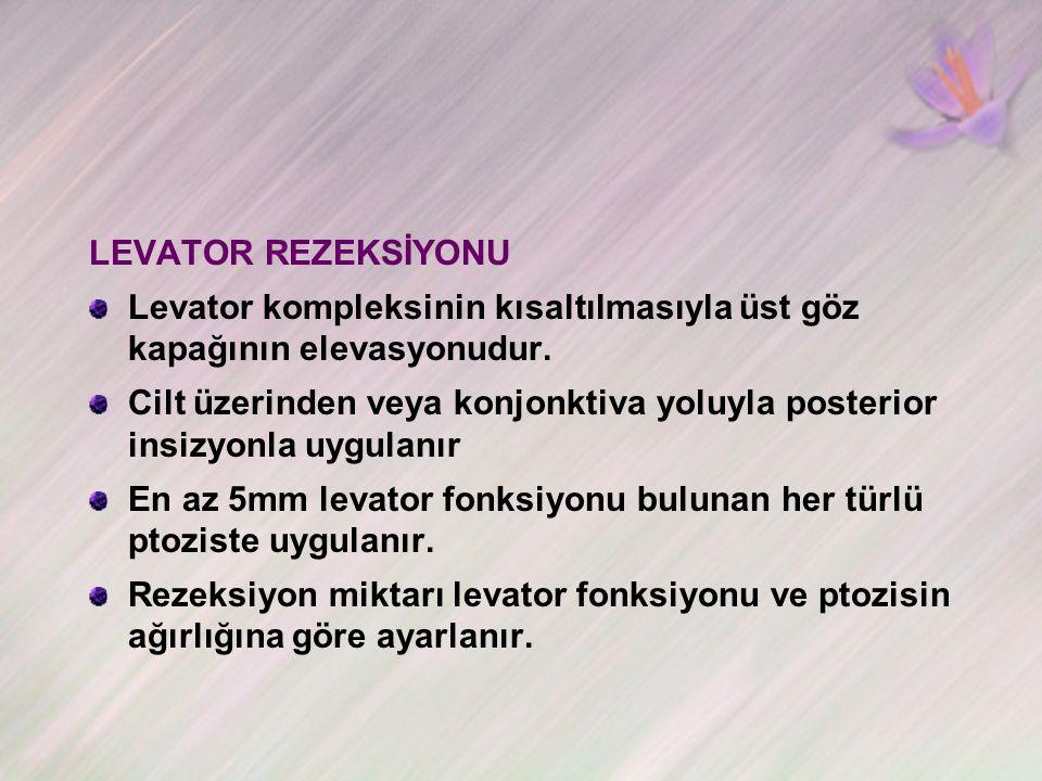 LEVATOR REZEKSİYONU Levator kompleksinin kısaltılmasıyla üst göz kapağının elevasyonudur.