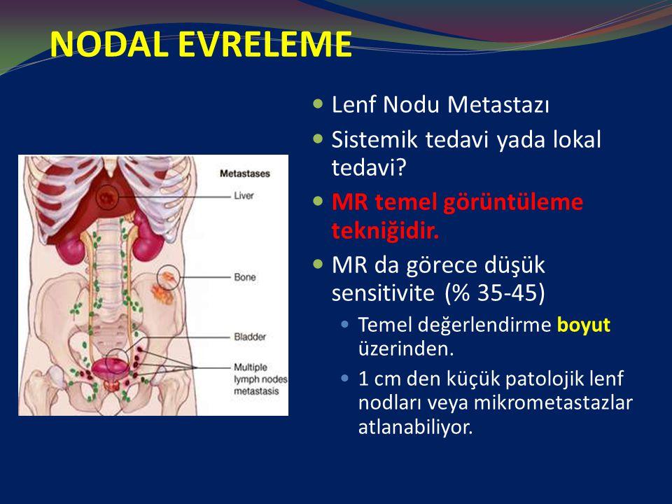 NODAL EVRELEME Lenf Nodu Metastazı Sistemik tedavi yada lokal tedavi