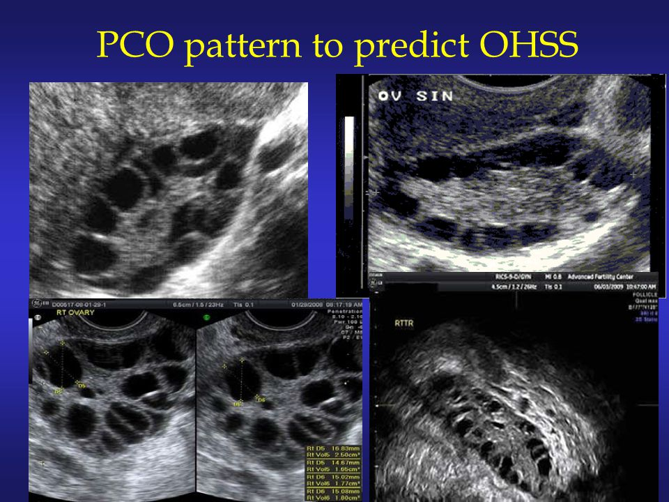 PCO pattern to predict OHSS