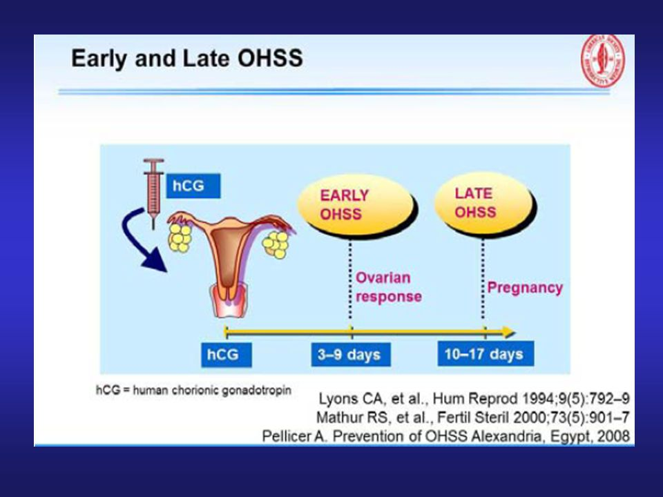 Early onset (early OHSS) up to 9 days after oocyte retrieval related to excessive ovarian response