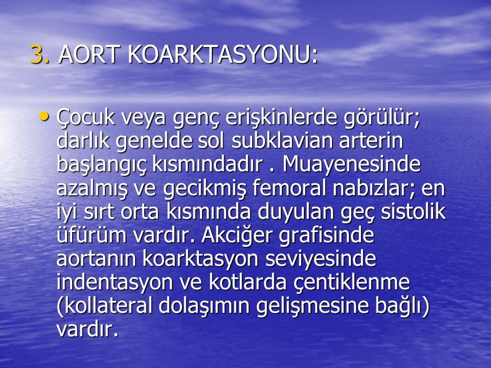 3. AORT KOARKTASYONU: