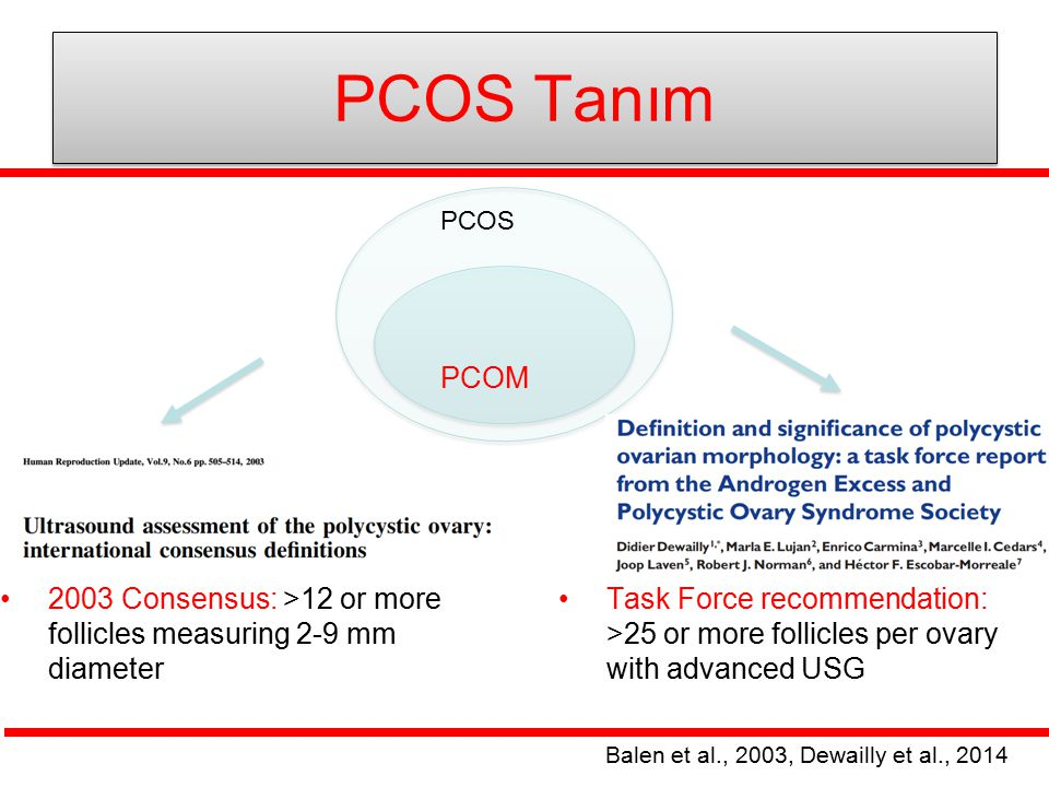 PCOS Tanım PCOS. PCOM. 2003 Consensus: >12 or more follicles measuring 2-9 mm diameter.