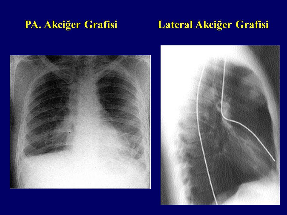 Lateral Akciğer Grafisi