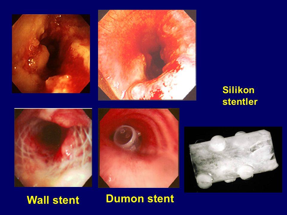 Silikon stentler Wall stent Dumon stent