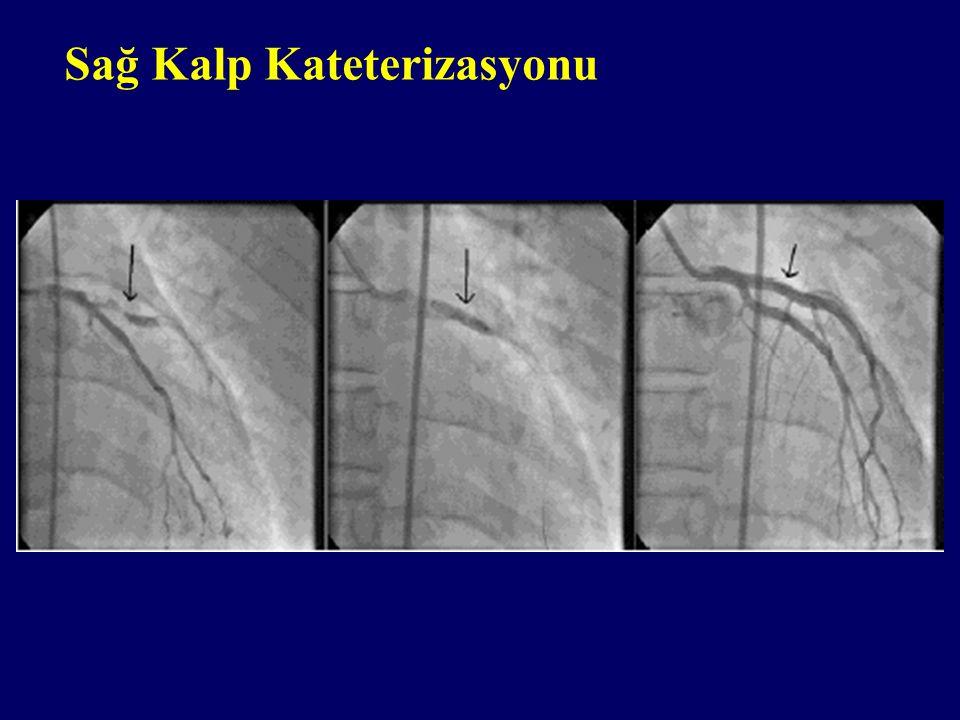 Sağ Kalp Kateterizasyonu