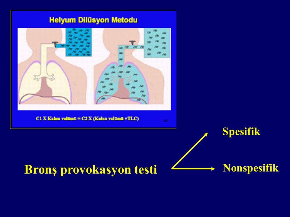Bronş provokasyon testi