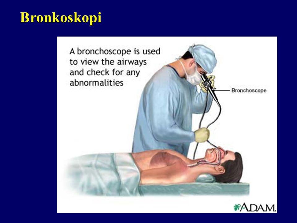 Bronkoskopi