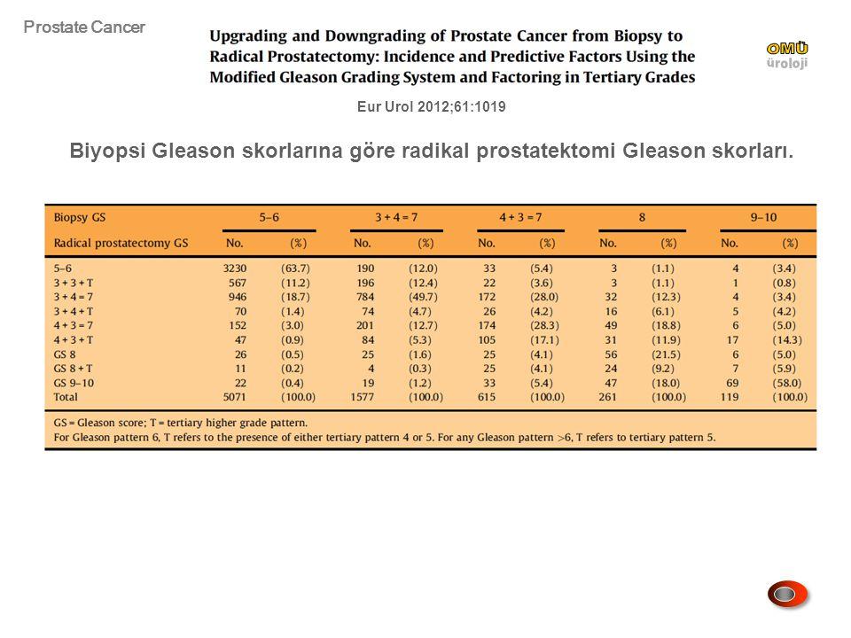 Prostate Cancer OMÜ. üroloji. Eur Urol 2012;61:1019.