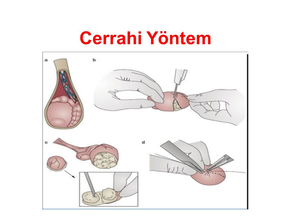 Cerrahi Yöntem