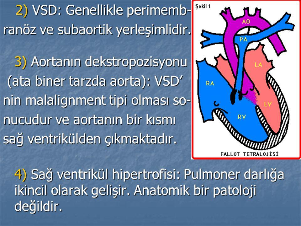 2) VSD: Genellikle perimemb-