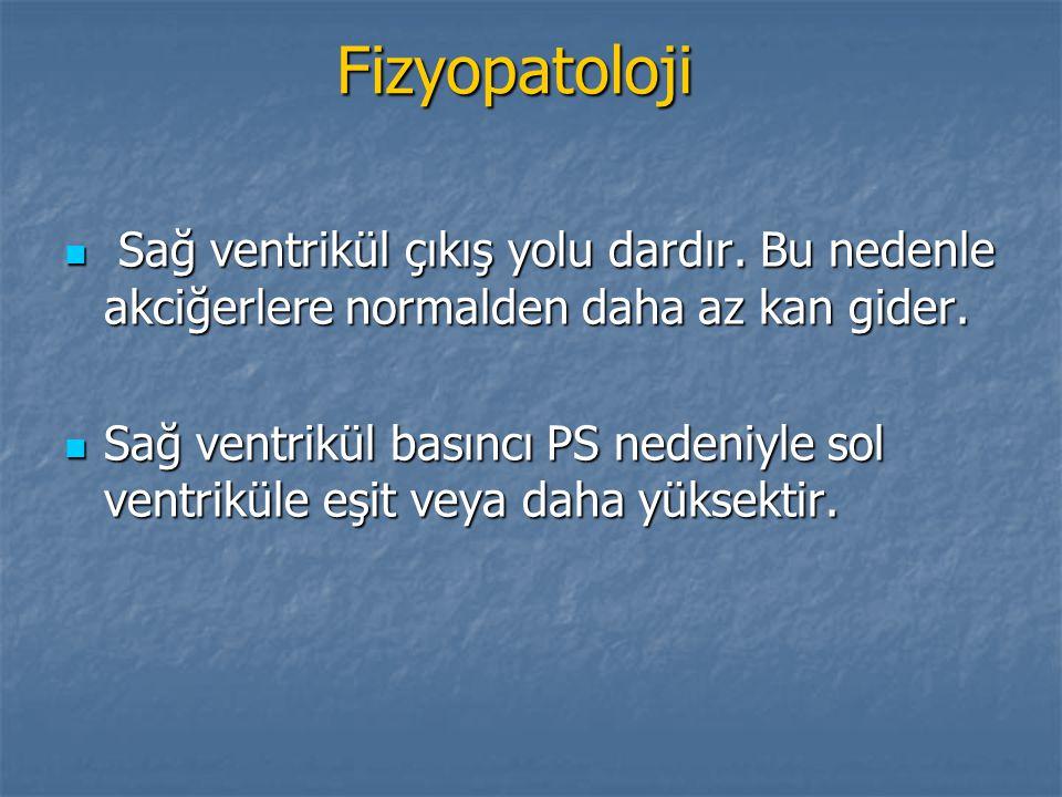 Fizyopatoloji Sağ ventrikül çıkış yolu dardır. Bu nedenle akciğerlere normalden daha az kan gider.