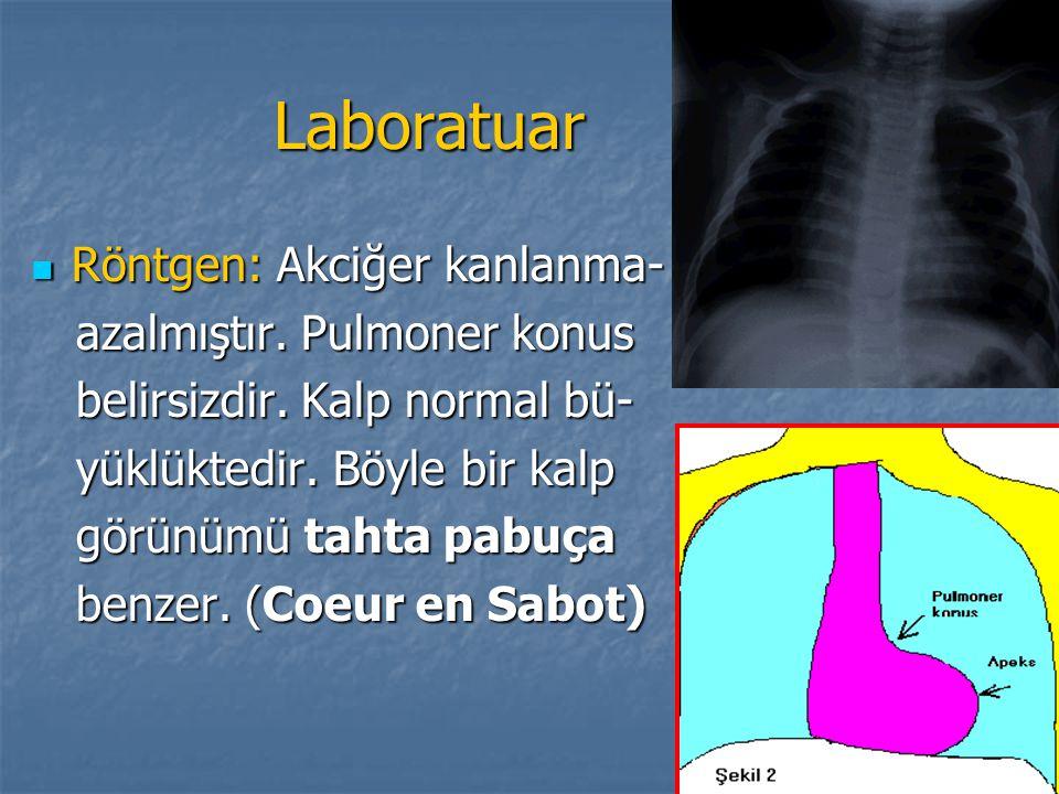 Laboratuar Röntgen: Akciğer kanlanma- azalmıştır. Pulmoner konus