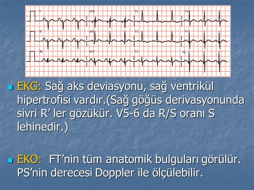 EKG: Sağ aks deviasyonu, sağ ventrikül hipertrofisi vardır