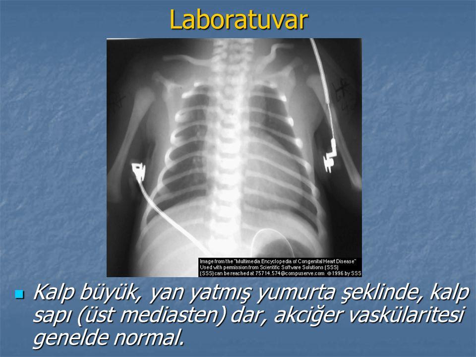 Laboratuvar Kalp büyük, yan yatmış yumurta şeklinde, kalp sapı (üst mediasten) dar, akciğer vaskülaritesi genelde normal.