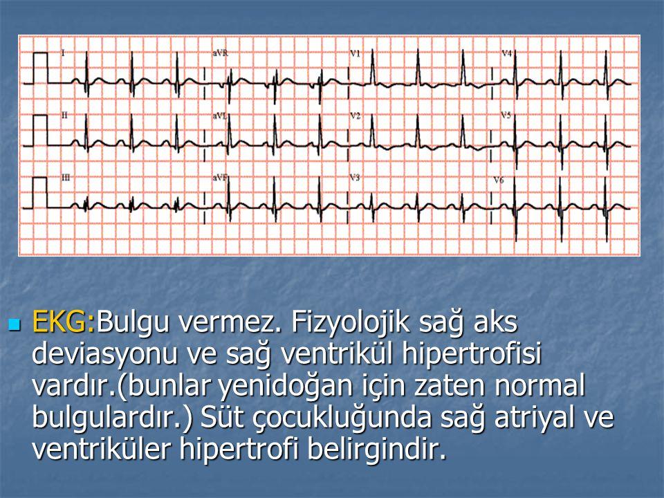 EKG:Bulgu vermez.