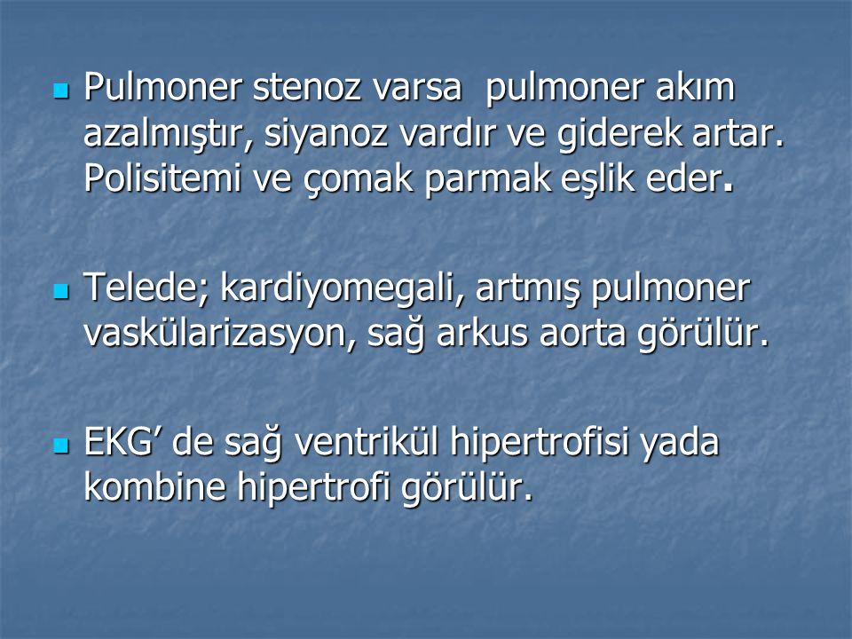 Pulmoner stenoz varsa pulmoner akım azalmıştır, siyanoz vardır ve giderek artar. Polisitemi ve çomak parmak eşlik eder.