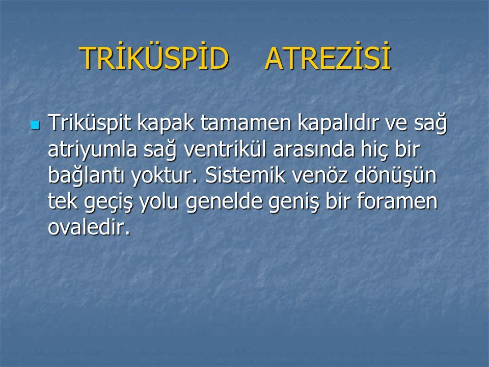 TRİKÜSPİD ATREZİSİ