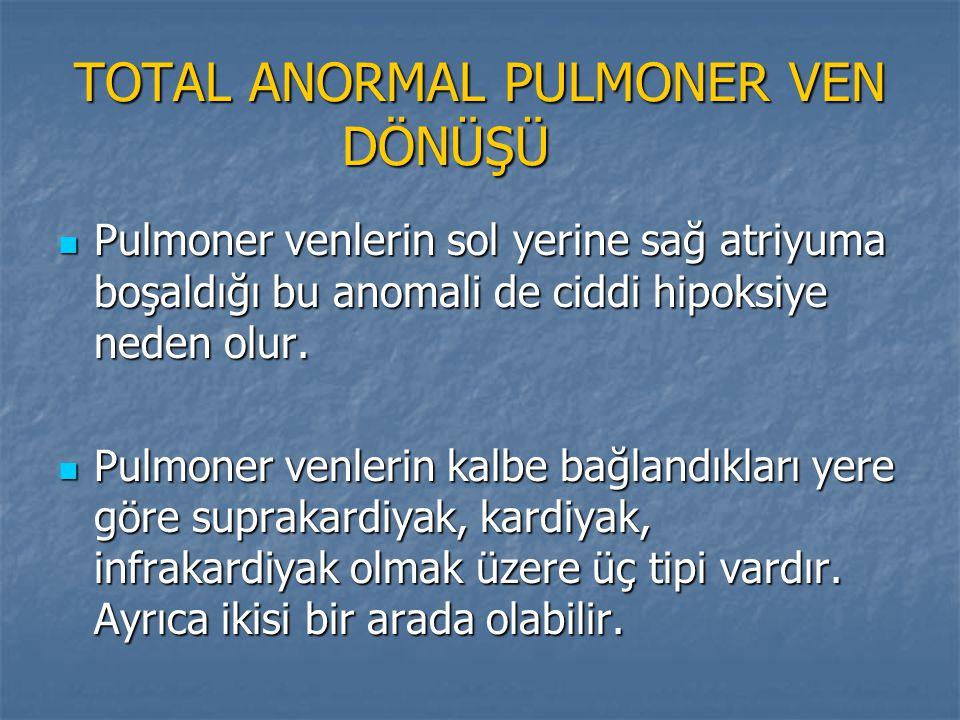 TOTAL ANORMAL PULMONER VEN DÖNÜŞÜ