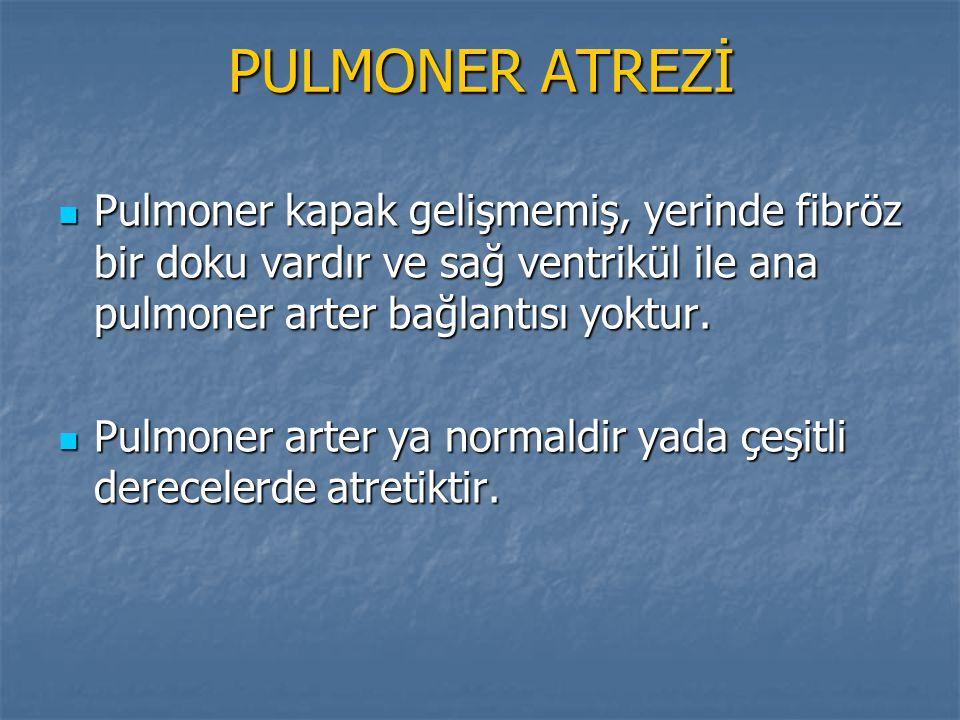 PULMONER ATREZİ Pulmoner kapak gelişmemiş, yerinde fibröz bir doku vardır ve sağ ventrikül ile ana pulmoner arter bağlantısı yoktur.