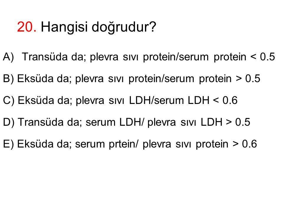 20. Hangisi doğrudur Transüda da; plevra sıvı protein/serum protein < 0.5. B) Eksüda da; plevra sıvı protein/serum protein > 0.5.